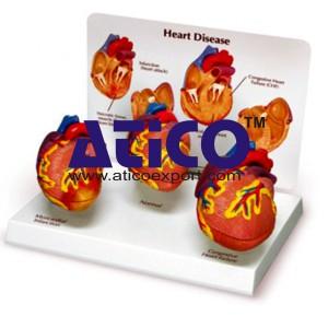 Heart Diseases Model