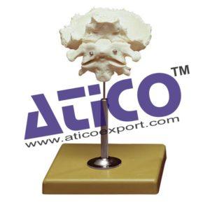 atlas-axis-and-occipital-bone-model