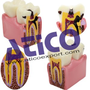 dental-caries-model