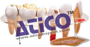human-teeth-model