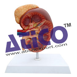 kidney-with-adrenal-gland-3x-life-size